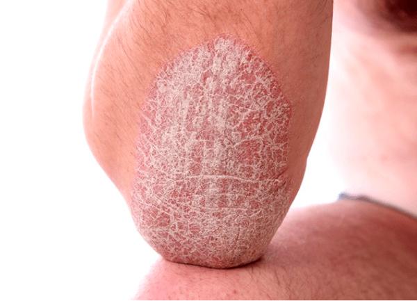 Nấm trên da