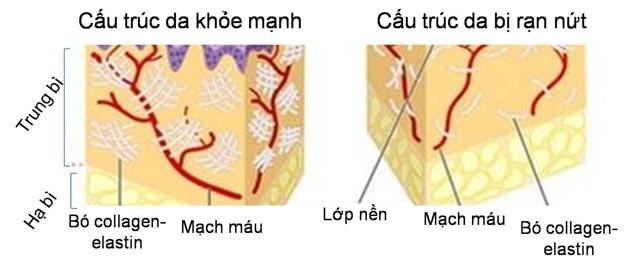 Hình ảnh minh họa nguyên nhân dẫn đến rạn da