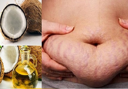 Trị rạn da bằng dầu dừa sau khi sinh