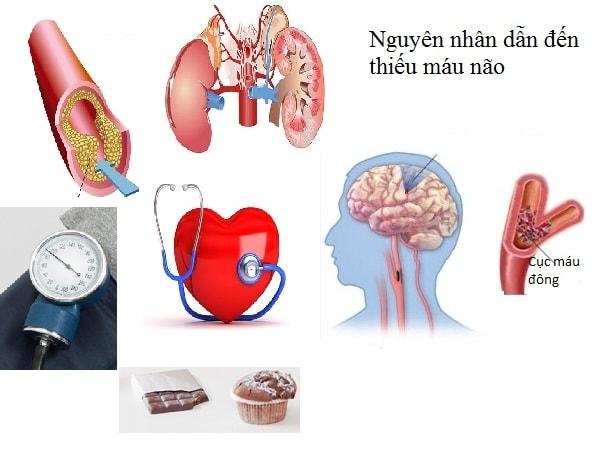 Những nguyên nhân thường gặp dẫn đến bệnh thiếu máu não 1