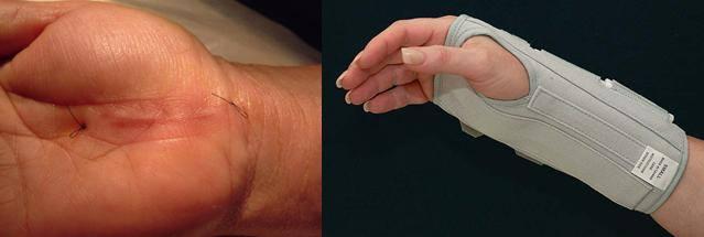 """Những nguy cơ tiềm ẩn khi bị """"hội chứng ống cổ tay"""" 2"""