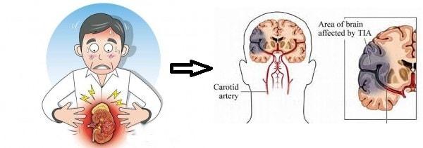 Những nguyên nhân thường gặp dẫn đến bệnh thiếu máu não 2