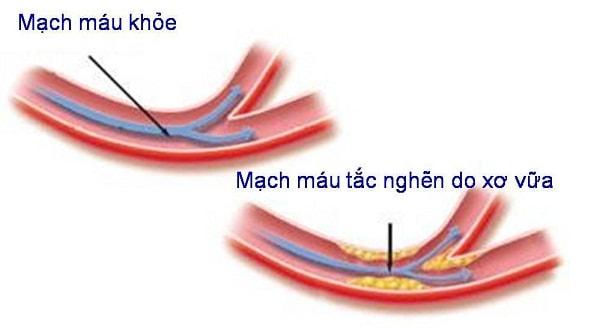 Những nguyên nhân thường gặp dẫn đến bệnh thiếu máu não 3