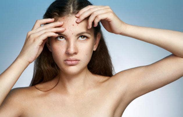 6 ảnh hưởng của stress đối với cơ thể của bạn 3