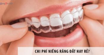 Chi phí niềng răng đắt hay rẻ?